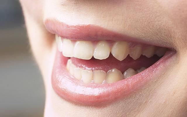歯が変色する原因